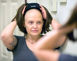 Conditions that Lead to Hair Loss in Women